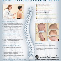 Scoliosis Poster Available To Healthcare-professionals For Scoliosis Screening